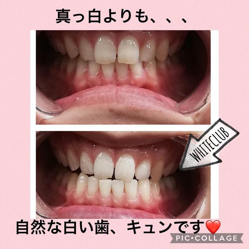 歯のホワイトニング=歯のエイジングケア! お肌のお手入れと一緒に是非!